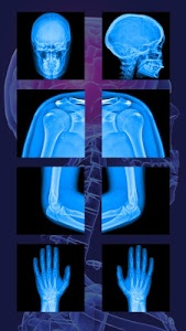 Download Real XRay Body Scanner Joke 1.0 APK